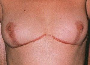 Келоидные рубца после операции по уменьшению груди