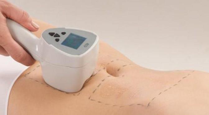 Лазерная перфорация как эффективный способ избавится от недостатков кожи